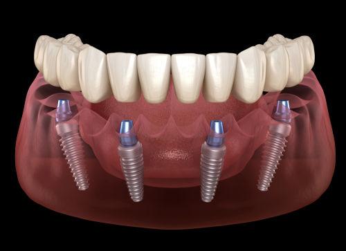 Hybrid dentures westborough